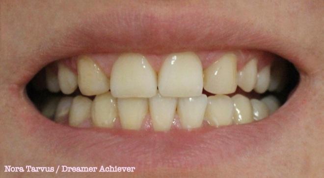 TeethAfter10days kopio