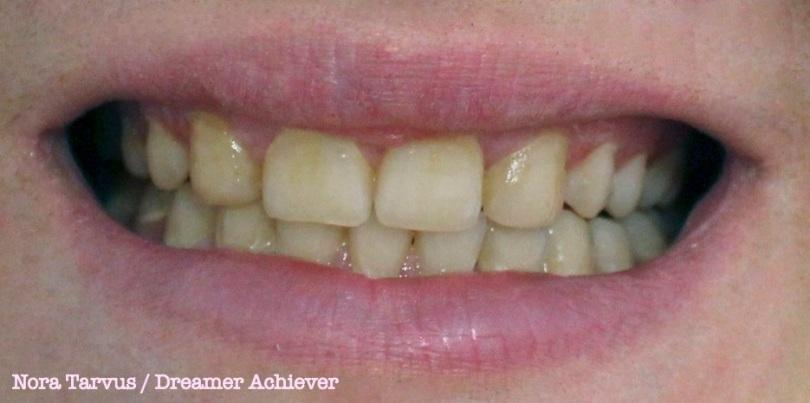 TeethBefore2