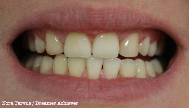 TeethDay1 kopio